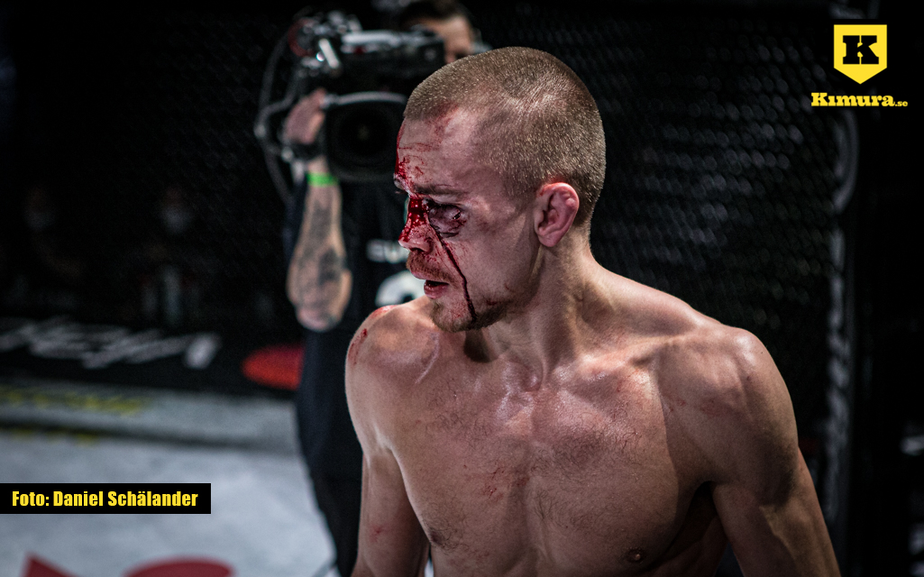 Adam Westlund blodig efter matchen mot Tobias Harila