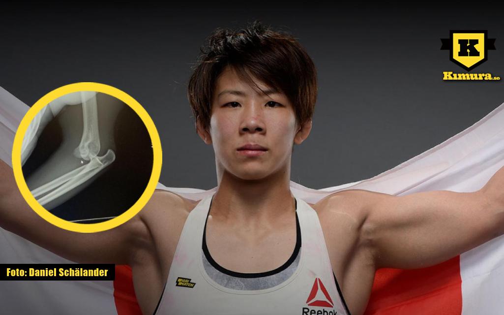 Kanako Murata med bild på Bruten arm i cirkel